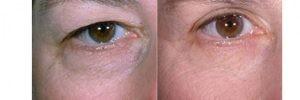 افتادگی پلک3 300x100 1 300x100 - داشتن چشمانی زیبا با رفع افتادگی پلک