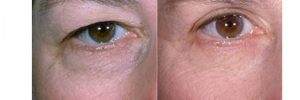 افتادگی پلک3 300x100 1 - داشتن چشمانی زیبا با رفع افتادگی پلک
