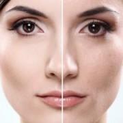 جوانسازی پوست 3 300x225 1 180x180 - تولد دوباره پوست