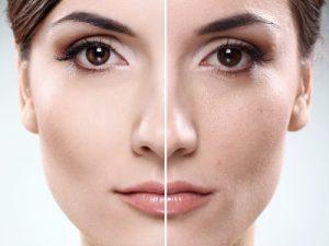 جوانسازی پوست 3 300x225 1 - تولد دوباره پوست