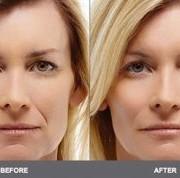 خنده 300x178 1 180x178 - خطوط خنده صورتتان را طبیعی درمان کنید.