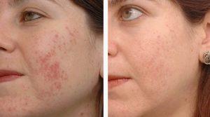 میکرونیدلینگ 300x167 1 - شادابی پوست با میکرونیدلینگ