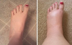 SwollenFeet 700x634 300x189 1 - عمل زیبایی ساق پا
