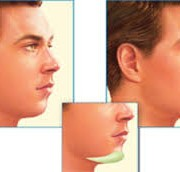 download 2 5 180x172 - عمل جراحی  چانه