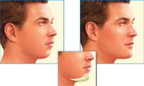 download 2 5 - عمل جراحی  چانه