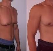 download 3 2 180x174 - کاهش پستان در مردان (ژنیکوماستی)