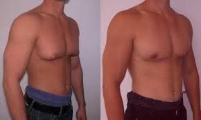 download 3 2 - کاهش پستان در مردان (ژنیکوماستی)