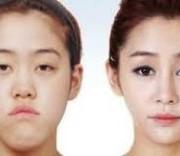 download 4 300x156 1 180x156 - عمل درشت کردن چشم ها:پیکانتوپلاستی و کانتوپلاستی جانبی