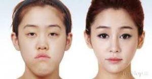 download 4 300x156 1 300x156 - عمل درشت کردن چشم ها:پیکانتوپلاستی و کانتوپلاستی جانبی