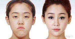 download 4 300x156 - عمل درشت کردن چشم ها:پیکانتوپلاستی و کانتوپلاستی جانبی
