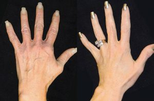 hand rejuvenation left 1 300x198 1 - جوانسازی پوست دست و انگشتان با تزریق ژل و چربی