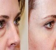 افتادگی 1 300x162 1 180x162 - جراحی پلک یا بلفاروپلاستی