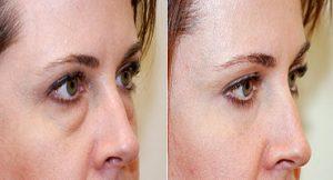 افتادگی 1 300x162 1 - جراحی پلک یا بلفاروپلاستی