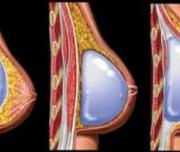 بزرگ کردن سینه پروتز سینه 300x152 1 180x152 - عمل جراحی بزرگ کردن سینه و سوالات متداول آن (1)