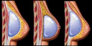 بزرگ کردن سینه پروتز سینه 300x152 1 300x152 - عمل جراحی بزرگ کردن سینه و سوالات متداول آن (1)