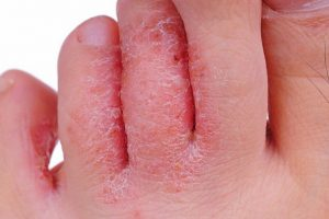 بیماری اگزما چیست و چه علائمی دارد ؟ 300x200 - درمان پزشکی اگزما چگونه است ؟