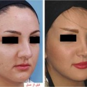 بینی 2 300x197 1 180x180 - جراحی بینی و هر آنچه باید بدانیم!