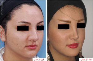 بینی 2 300x197 1 - جراحی بینی و هر آنچه باید بدانیم!