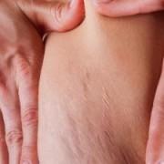 ترک حاملگی 300x225 1 180x180 - علل ایجاد ترک های پوستی