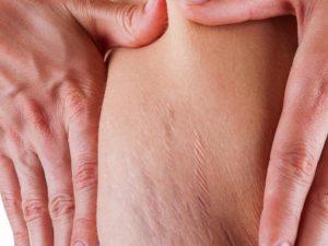 ترک حاملگی 300x225 1 - علل ایجاد ترک های پوستی