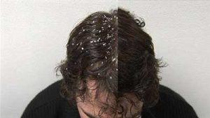 درمان های طبیعی برای شوره سر