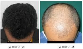 روش های درمانی موثر در ریزش مو 1 - روش های درمانی موثر برای ریزش مو