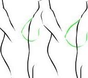 سینه6 300x160 1 180x160 - حقیقت هایی که باید راجع به عمل جراحی سینه بدانیم. (3)