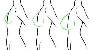 سینه6 300x160 1 300x160 - حقیقت هایی که باید راجع به عمل جراحی سینه بدانیم. (3)
