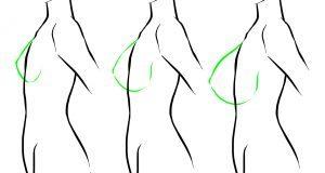 حقیقت هایی که باید راجع به عمل جراحی سینه بدانیم. (3)