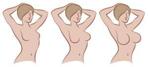 انتقال چربی به بافت سینه و نتایج حاصله از آن