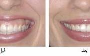 لبخند لثه ای2 300x112 1 180x112 - لبخند لثه ای و درمان آن با بوتاکس