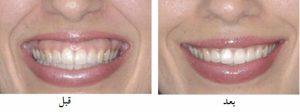 لثه ای2 300x112 - لبخند لثه ای و درمان آن با بوتاکس