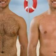 لیزر موهای زائد 3 300x204 180x180 - نکات مهمی که باید در مورد لیزر موهای زائد دانست