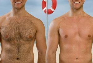 لیزر موهای زائد 3 300x204 300x204 - نکات مهمی که باید در مورد لیزر موهای زائد دانست