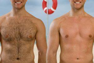 لیزر موهای زائد 3 300x204 - نکات مهمی که باید در مورد لیزر موهای زائد دانست