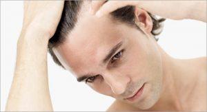 خطرات احتمالی عمل پیوند مو