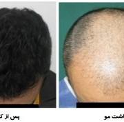 مو 300x177 1 180x177 - سرعت بخشیدن به رشد مو بعد از کاشت مو