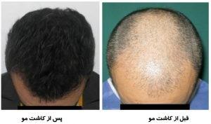 مو 300x177 1 300x177 - سرعت بخشیدن به رشد مو بعد از کاشت مو
