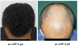 مو 300x177 1 - سرعت بخشیدن به رشد مو بعد از کاشت مو