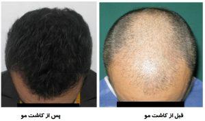 سرعت بخشیدن به رشد مو بعد از کاشت مو