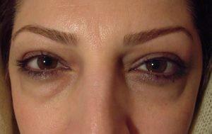 پف چشم2 300x189 1 300x189 - پف چشم و علل و روش های رفع آن