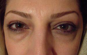 پف چشم2 300x189 1 - پف چشم و علل و روش های رفع آن