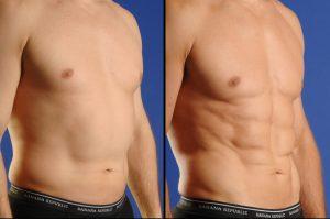 SmartlipoTriPlex abdomen before after 2 300x199 - با لیزر لیپولیز آشنا شوید!!!