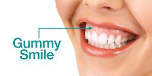 gummy smile 300x150 1 - با لبخند لثه ای چه میتوان کرد؟!؟
