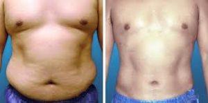 images 2 1 300x149 1 - جراحی شکم با استفاده ازابدومینوپلاستی