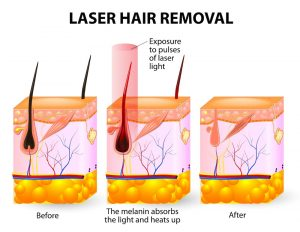 The laser emits an invisible light which penetrates the skin without damaging it. At the hair follicle, the laser light absorbed by the pigments is converted into heat. This heat will damage the follicle.