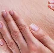 ترک2 1 180x174 - چرا پوستمان دچار ترک می شود؟