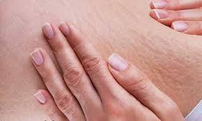 ترک2 1 - چرا پوستمان دچار ترک می شود؟