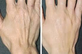 آیا می توانیم انگشتان خود را جوان کنیم؟