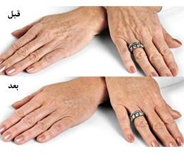 دست 2 269x240 - آیا می توانیم انگشتان خود را جوان کنیم؟